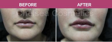 Liposuction & Liposculpture Clinic in Melbourne - Chelsea Cosmetics
