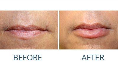Lips Surgery Melbourne