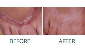 Scar Treatment