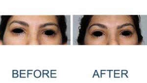 Eyebrows Lift to Remedy Eye Ptosis | Chelsea Cosmetics