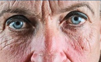 Sun Damaged Skins