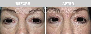 upper eyelid blepharoplasty cost melbourne