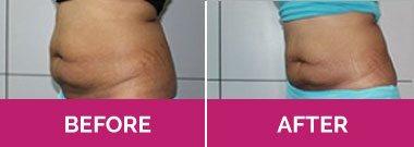 liposuction melbourne cost