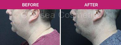 double chin liposuction melbourne