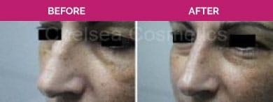 nose fillers melbourne