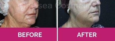 thread face lift melbourne