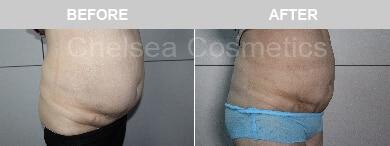 Abdomen slim lipo procedure and cost good result