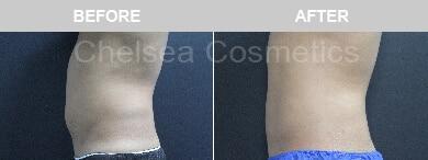Abdomen Liposuction For Men