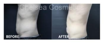 mens liposuction stomach