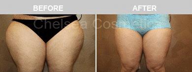 thigh lipo