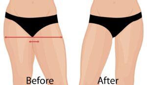 thigh surgery
