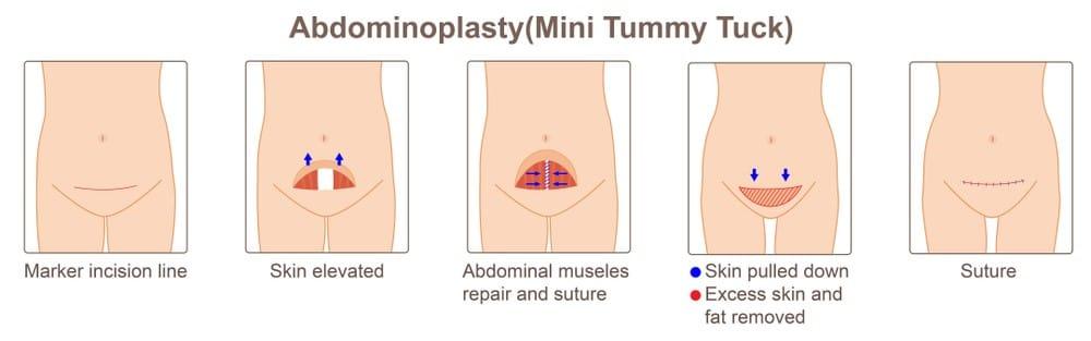abdominoplasty melbourne