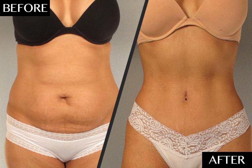 Full & Mini Tummy Tuck Abdominoplasty Melbourne From $154/Week