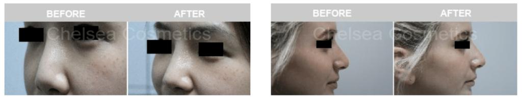 dermal fillers nosedermal fillers nose before and after
