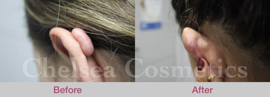 keloid scar removal melbourne