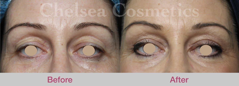 upper eyelid surgery melbourne