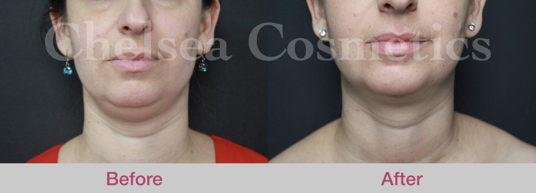 female chin liposuction melbourne