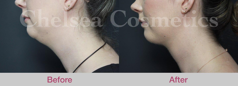 female chin lipo melbourne