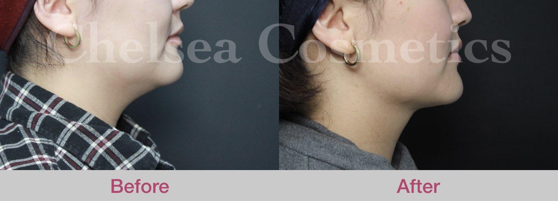 chin liposuction melbourne