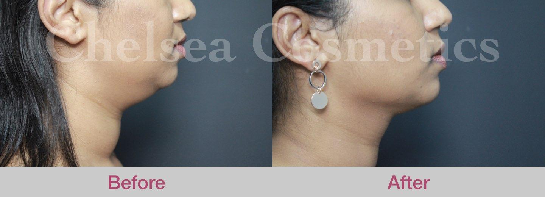 chin liposuction for female melbourne