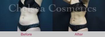 slim liposuction