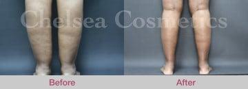 Leg Liposuction