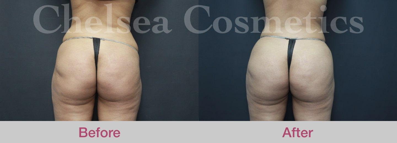 fat transfer to buttocks melbourne