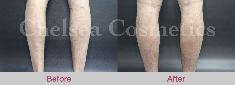leg stem cell melbourne