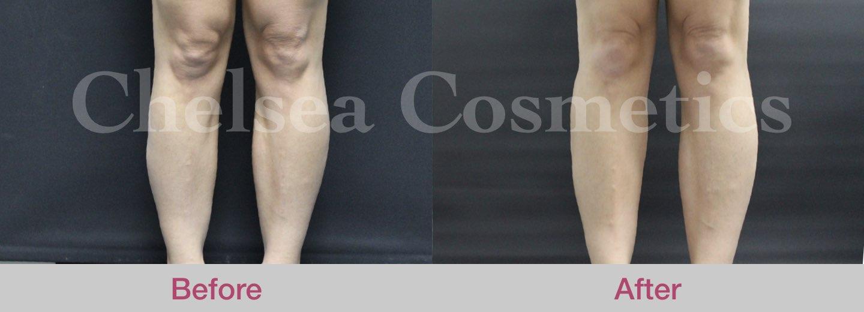 fat transfer to legs melbourne