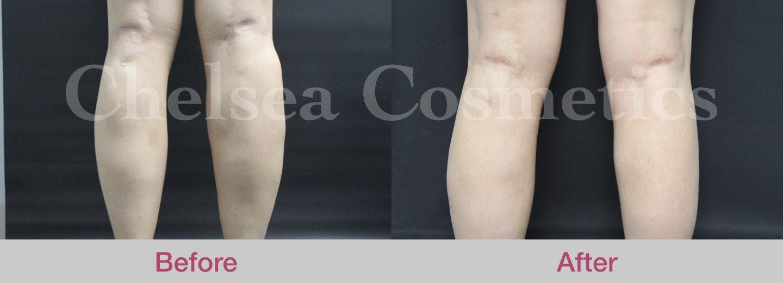 fat transfer to leg melbourne