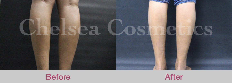 leg stem cells treatment