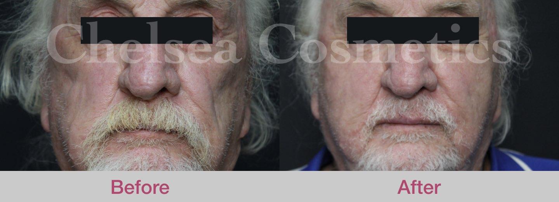 lower face stem cell treatment melbourne