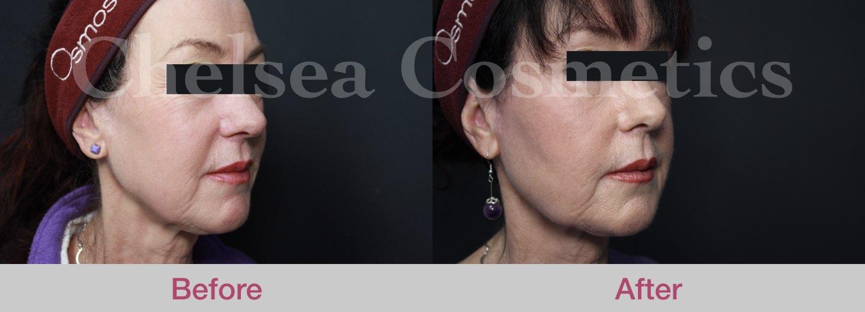 lower face stem cell melbourne