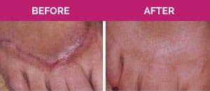 keloid scar removal