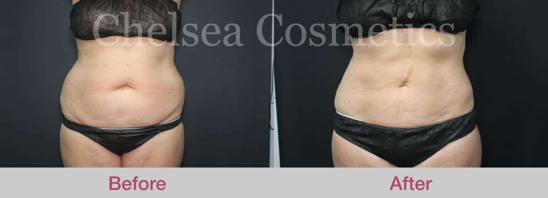 abdomen-flanks-lipo-melbourne