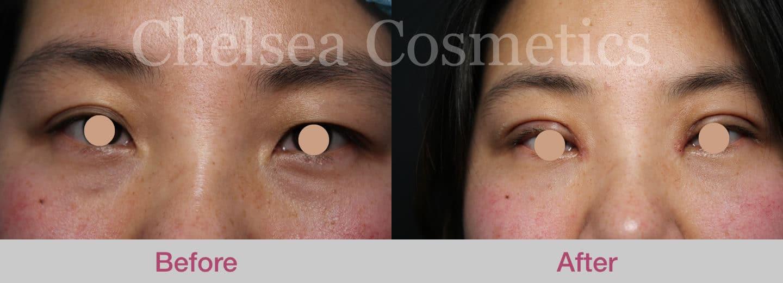eyelid-surgery-melbourne