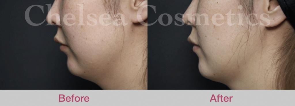 dermal fillers Melbourne before and after