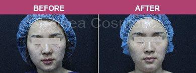 face concentrate transplant melbourne