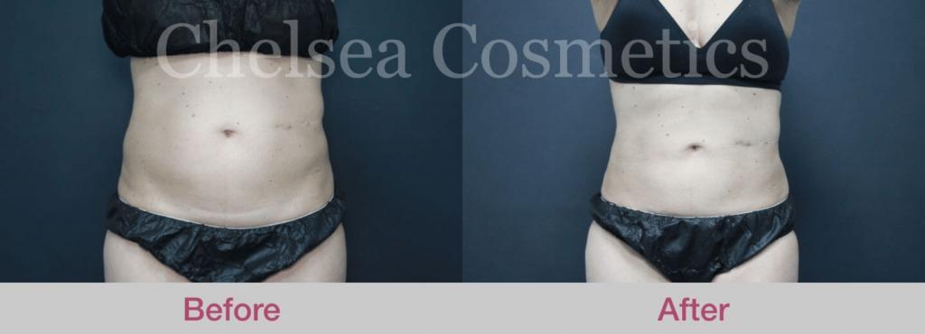 liposuction in melbourne