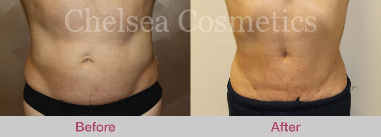 stomach liposuction case study
