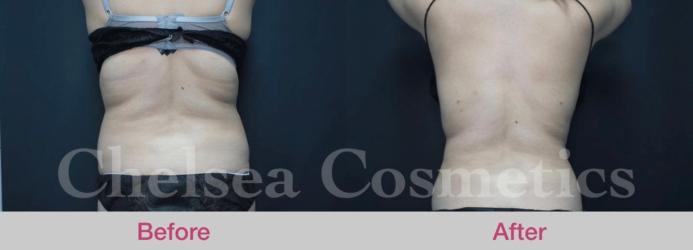liposuction procedure melbourne